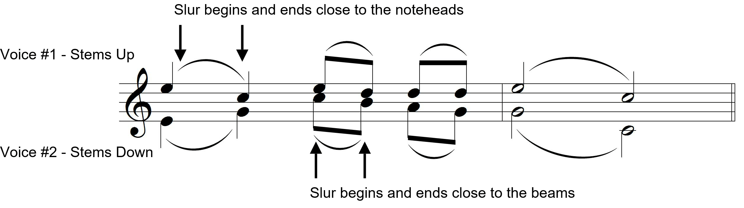 Ultimate Music Theory - Two Part Writing - Slur